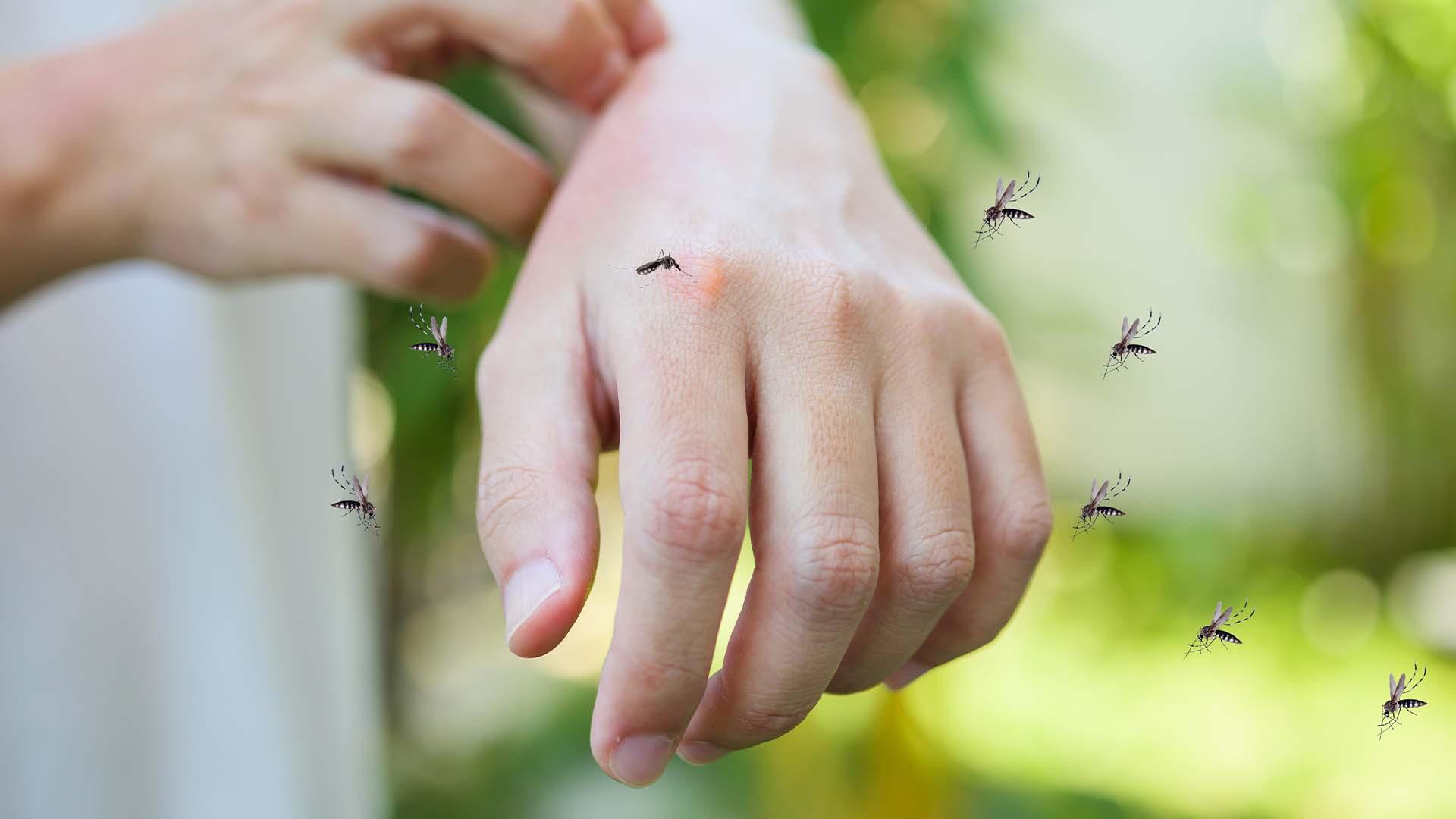 mosquitoes biting around hands